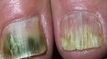 El remedio fácil y económico para desvanecer el hongo y amarillo de las uñas.