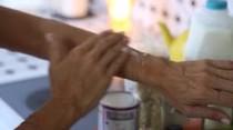 Los remedios de la abuela para ayudar a aliviar la inflamación y el picor causado por la psoriasis en la piel.
