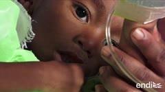 Se cuadruplican los casos de sarampión en el mundo