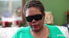 Una mujer de Toa Baja vive con el síndrome de Stevens-Johnson
