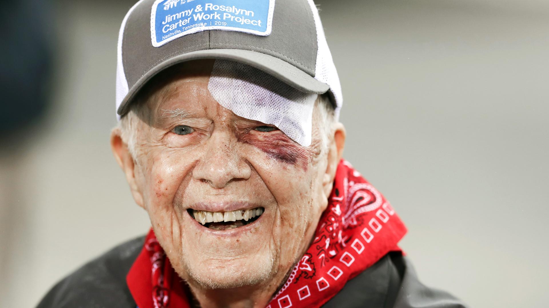 El expresidente Jimmy Carter sufre un accidente